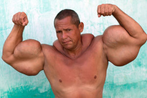 Synthol Abuse